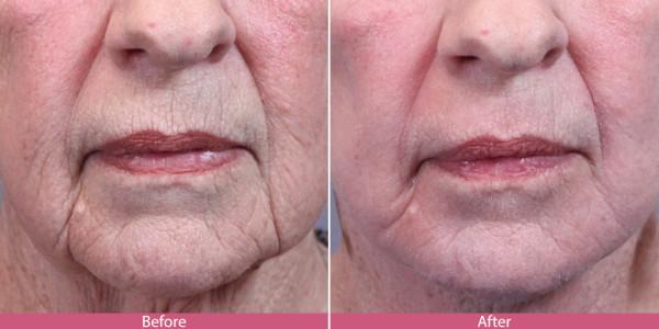 before after laser skin resurfacing
