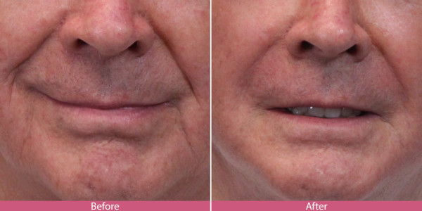 before and after lipo injection