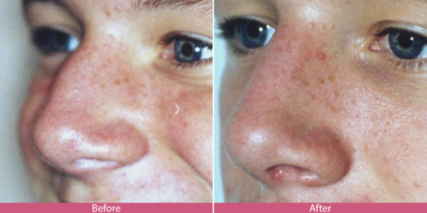 rhinoplasty nose surgery before after