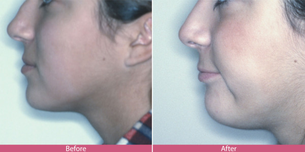 before and after nose surgery rhinoplasty Bellevue