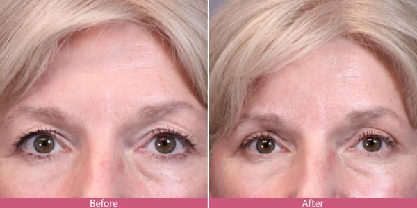 blepharoplasty - eye tuck before aftee
